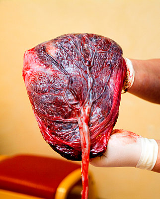 Close-up of gloved hands holding a placenta with umbilical cord - p1025m788547f by Matton