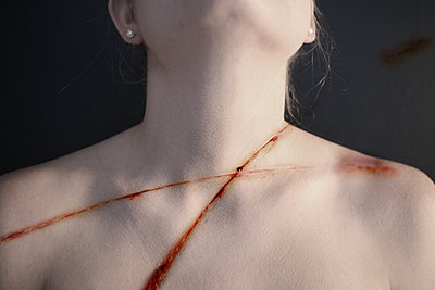 Wound or cut on the body - p1038m2087607 by BlueHouseProject