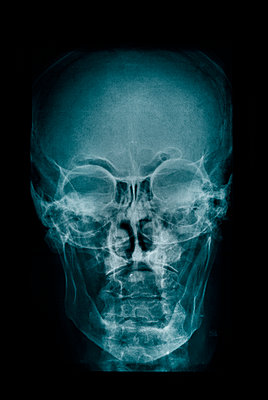 Skull x-ray - p1028m1074293 by Jean Marmeisse