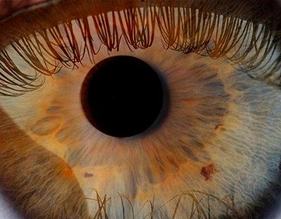 Pupille - p0900029 von Lenz