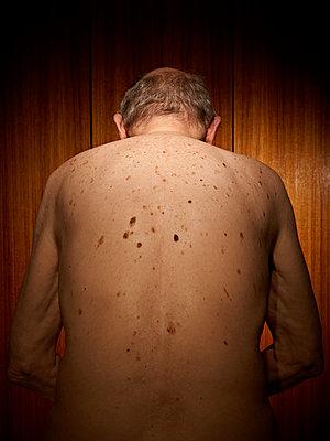 Rücken und Leberflecken eines alten Mannes - p1092m1115552 von Rolf Driesen