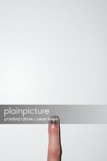 Verletzter Finger - p1505m2128744 von Jakob Weber