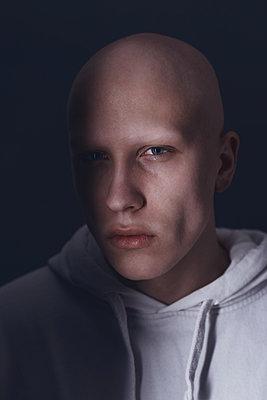 Alopecian man - p1561m2133258 by Andrey Cherlat