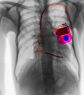 CXR with pacemaker for atrial fibrillation - p429m743879 by Callista Images