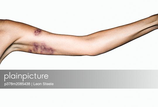 Bruised Arm - p378m2085438 by Leon Steele