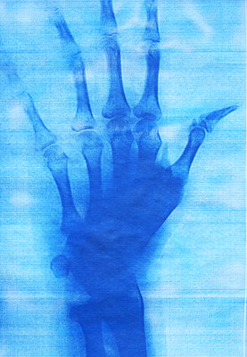 X-ray image of a hand - p969m2290866 by Alix Marie