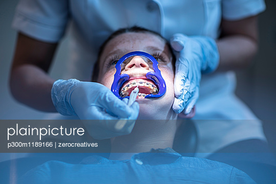 Boy in dental surgery receiving orthodontic treatment - p300m1189166 by zerocreatives