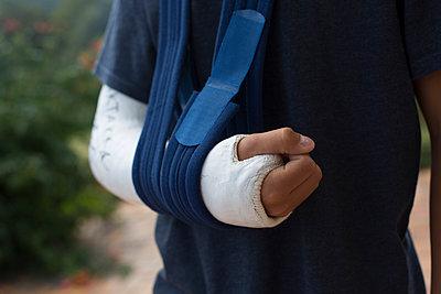 Broken arm - p445m931917 by Marie Docher