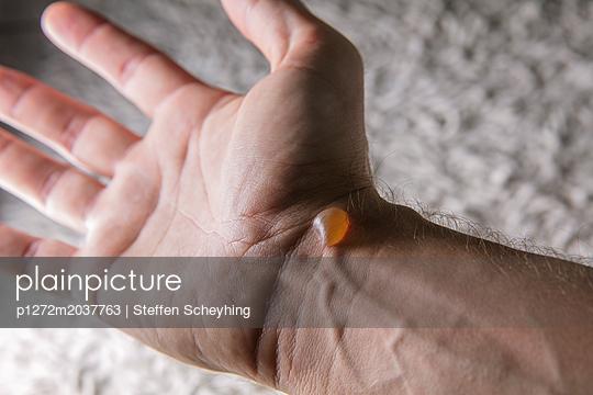 Brandblase - p1272m2037763 von Steffen Scheyhing