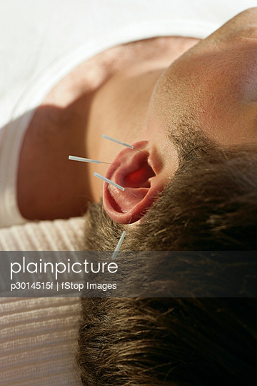 Close-up of man receiving acupuncture on ear