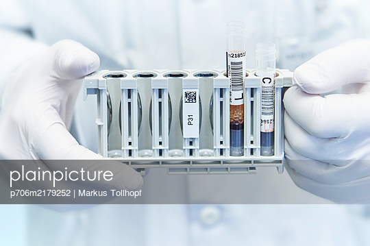 Scientist holding test series - p706m2179252 by Markus Tollhopf