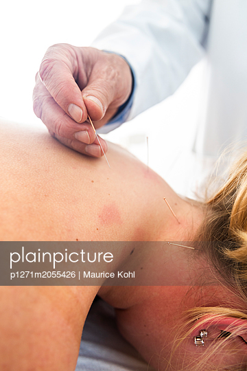 Akupunkturbehandlung - p1271m2055426 von Maurice Kohl