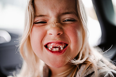 Happy girl with teeth missing - p312m2208187 by Anna Johnsson