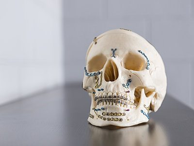 Implants for skull and lower jaw - p390m2122345 by Frank Herfort