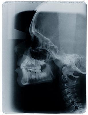 X-Ray Image - p1870425 by Katarzyna Zommer