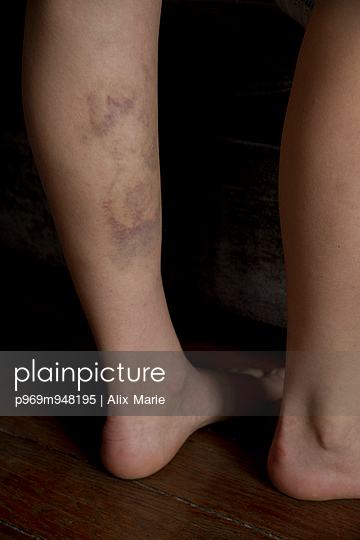Bruised Leg - p969m948195 by Alix Marie