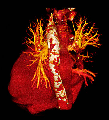 CT scan of heart with calcific aorta - p429m743882 by Callista Images