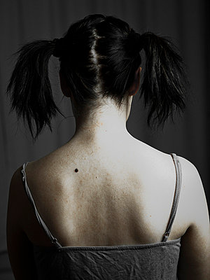 Woman with birthmark - p4130705 by Tuomas Marttila