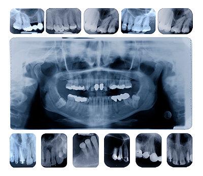 X-Ray of teeth - p1870424 by Katarzyna Zommer