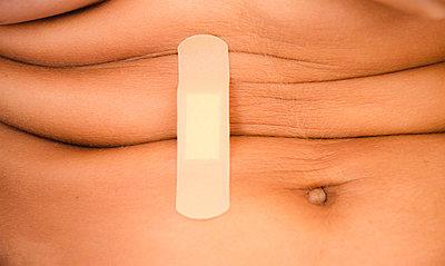 Band-aid and abdominal skin folds, close-up - p1656m2270178 by Javier Martinez Bravo