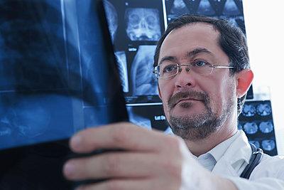 Doctor examining Xray image - p429m2075371 by REB Images