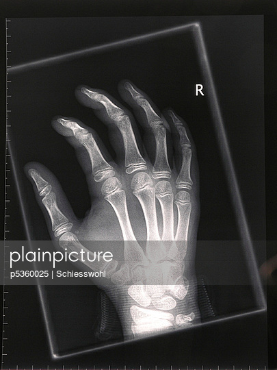 Radiograph - p5360025 by Schiesswohl