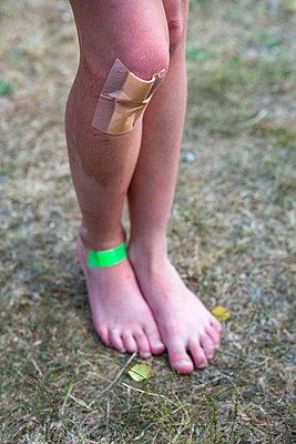 Kind mit Pflaster an Knie und Fuß - p1057m1041487 von Stephen Shepherd