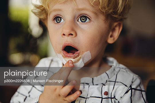 Portrait of little boy with patch on his chin - p300m2226838 by Mareen Fischinger