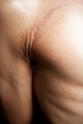 Scar slightly above armpit - p817m2008013 by Daniel K Schweitzer