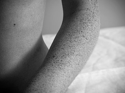 Arm with freckles - p4130440 by Tuomas Marttila