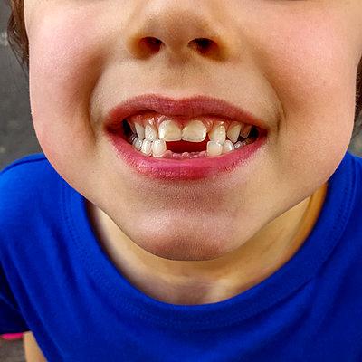 Child with gap between teeth - p813m1332329 by B.Jaubert