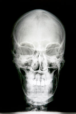 X-ray of the skull - p451m854936 by Anja Weber-Decker