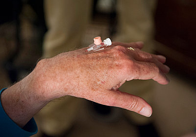 Intravenous cannula on hand  - p896m835492 by Sabine Joosten