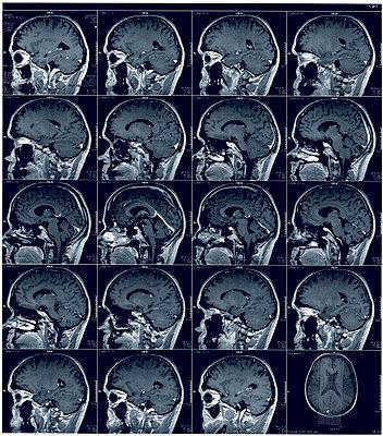 Tomography of skull - p1870431 by Katarzyna Zommer