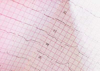 Close-up of an electro cardiogram report - p4735891f by STOCK4B-RF