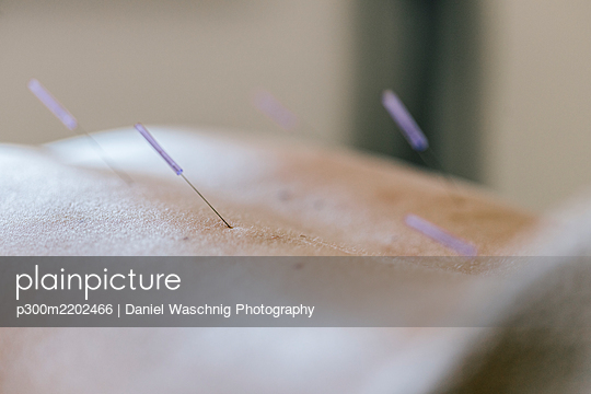 Acupuncture, acupuncture needle during treatment at back - p300m2202466 by Daniel Waschnig Photography