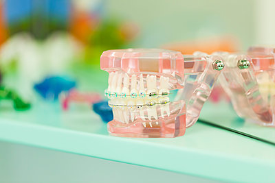 Tooth model with braces - p300m1166819 by Zeljko Dangubic