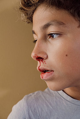 Young boy bleeding from the nose - p1521m2133640 by Charlotte Zobel