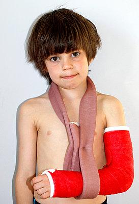 Broken Arm - p1082m912441 by Daniel Allan