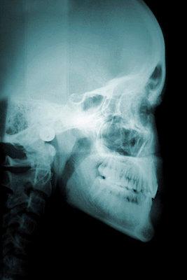 Röntgenbild - p4500574 von Hanka Steidle
