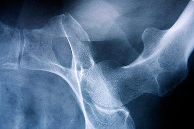 X-ray, close-up - p3004953f by John-Patrick Morarescu