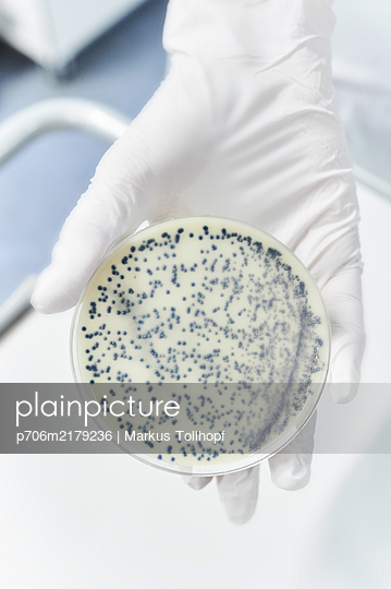 Petri dish with cell culture - p706m2179236 by Markus Tollhopf