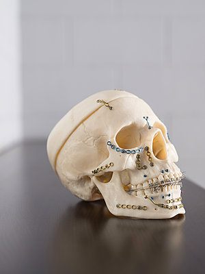 Implants for skull and lower jaw - p390m2122354 by Frank Herfort