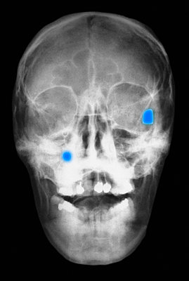 X-ray of head showing two bullets in the skull - p429m743878 by Callista Images