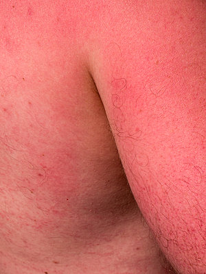 Sonnenbrand - p1021m2020389 von MORA