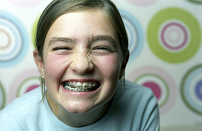 portrait of grinning girl showing her braces - p3160674f by Claudia Göpperl