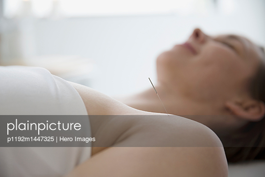 Serene woman receiving acupuncture with needle in shoulder