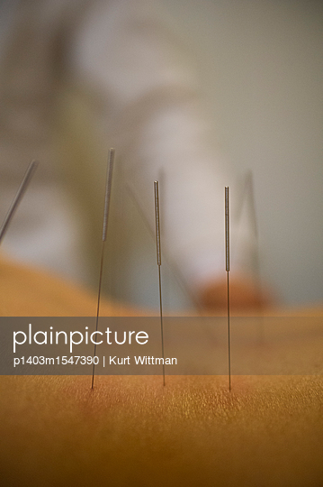 plainpicture | Photo library for authentic images - plainpicture p1403m1547390 - Acupuncture Treatment Session - plainpicture/Universal Images Group/Kurt Wittman
