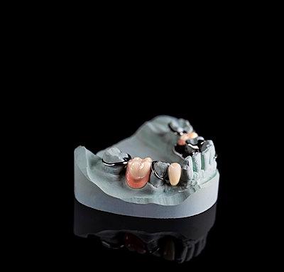 Denture - p1275m2210238 by cgimanufaktur