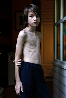 Boy after operation - p1221m1025828 by Frank Lothar Lange